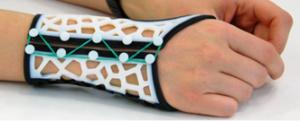 3D splint